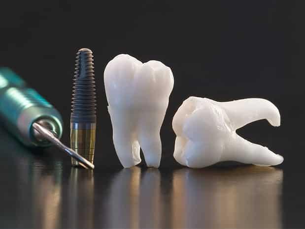protesi-fissa-mobile-combinata-impianti-resina-ceramica-salerno-nuova-tecnologia-dentale-roberto-landi2