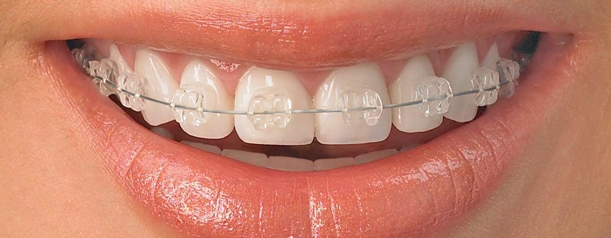 ortonzia-ortodonsista-apparecchio-macchinetta-denti-storti-palato-stretto-stelline-salerno-nuova-tecnologia-dentale-roberto-landi2