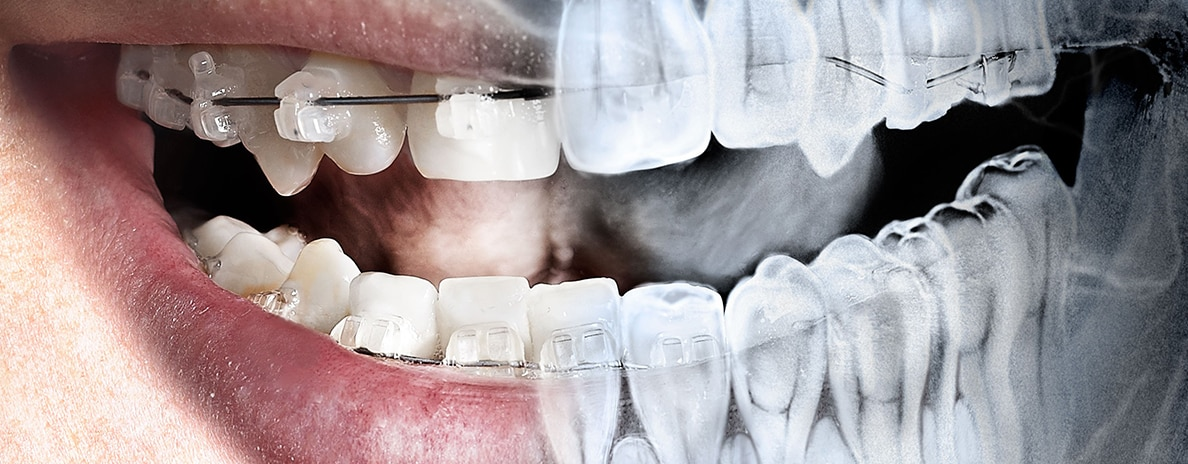 radiografia-digitale-bitewing-periapicale-panoramica-ortopanoramica-salerno-nuova-tecnologia-dentale-roberto-landi