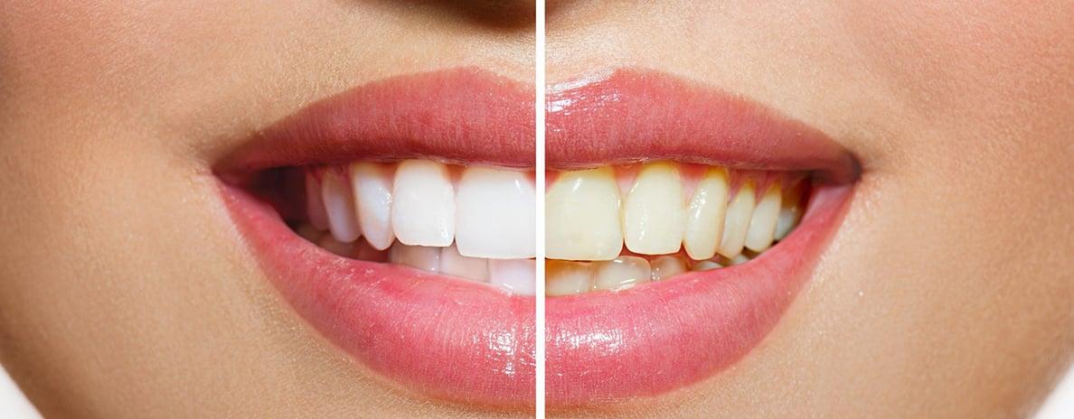 sbiancamento-denti-professionale-dentista-salerno-nuova-tecnologia-dentale-roberto-landi-1